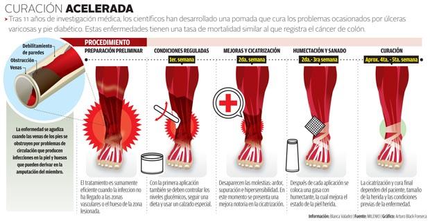 amputación de piernas por diabetes