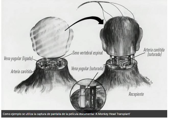 Sigue el debate en torno al posible primer transplante de cabeza del mundo